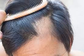 Quelques conseils pour traiter efficacement la pelade